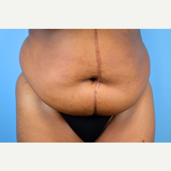 45-54 year old woman treated with Panniculectomy; 15 months post-op before 2735604