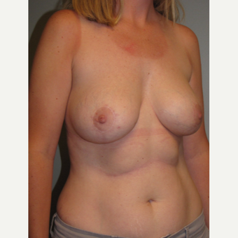35-44 year old woman treated with Breast Implant Revision after 3136609