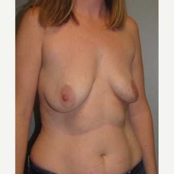 35-44 year old woman treated with Breast Implant Revision before 3136609