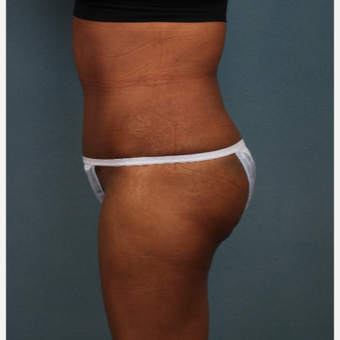 45-54 year old woman treated with Tummy Tuck after 3253778
