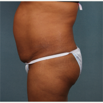 45-54 year old woman treated with Tummy Tuck before 3253778