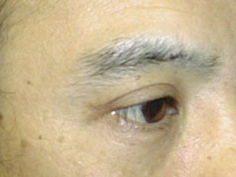 Upper Eyelid Blepharoplasty after 1007760