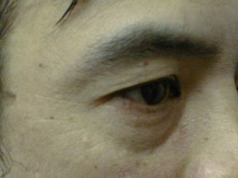 Upper Eyelid Blepharoplasty before 1007760