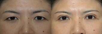 Young Asian woman with Asian Blepharoplasty
