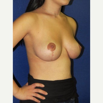 35-44 year old woman treated with Breast Lift after 2166822