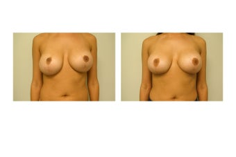 breast Revision  before 983140