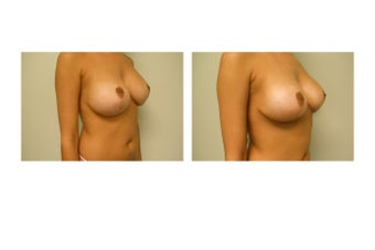 breast Revision  983140