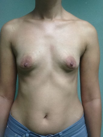 Breast Augmentation before 1015813