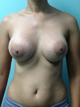 Breast Augmentation after 1015813