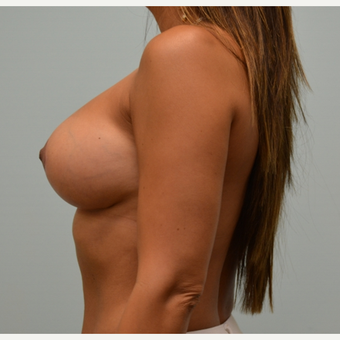 Removal of intact saline implants, insertion of smaller silicone implants, and breast lift. after 2458202