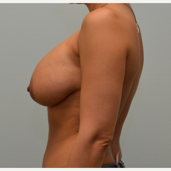 Removal of intact saline implants, insertion of smaller silicone implants, and breast lift. before 2458202