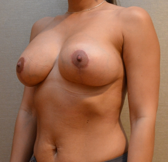 Removal of intact saline implants, insertion of smaller silicone implants, and breast lift. 2458202