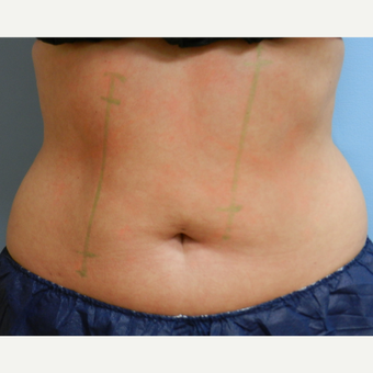 35-44 year old woman treated with CoolSculpting before 3748649