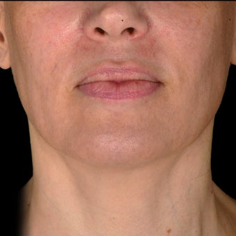 35-44 year old woman treated with Exilis after 3384271