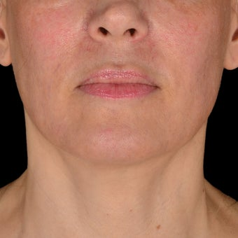 35-44 year old woman treated with Exilis before 3384271