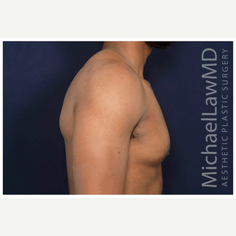 25-34 year old man treated with Male Breast Reduction after 3174102