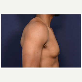 25-34 year old man treated with Male Breast Reduction before 3174102
