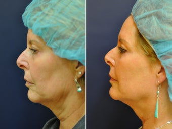 56 Year Old Female Before/After Ultherapy Full Face before 1053228