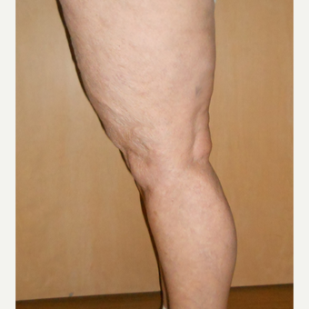 65-74 year old woman treated with Vein Treatment after 3161469