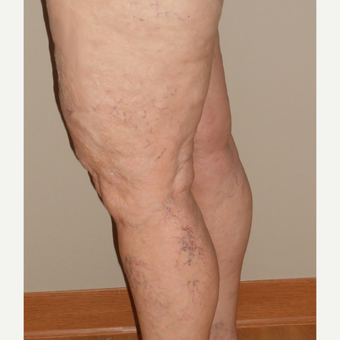 65-74 year old woman treated with Vein Treatment before 3161469