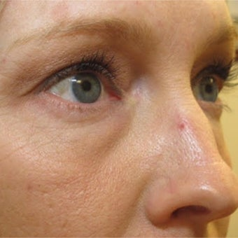35-44 year old woman treated with 532nm laser for hemangioma removal