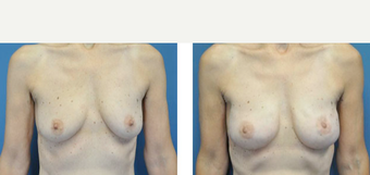 35-44 year old woman treated with Breast Lift with Implants before 3776383