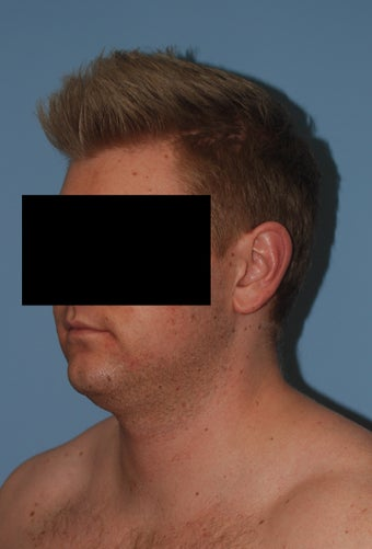 26 y/o man with fat underneath chin and neck treated with VASER (ultrasound assisted liposuction)