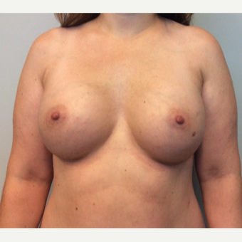 35-44 year old woman treated with Breast Augmentation after 3143432