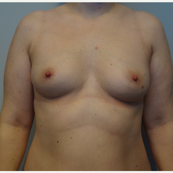 35-44 year old woman treated with Breast Augmentation before 3143432