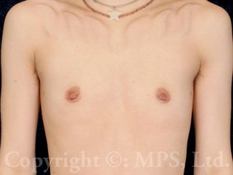 23 year-old gender-nonconforming patient requesting keyhole mastectomies after 1304432