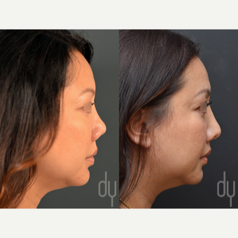 Revision Asian Rhinoplasty before 3477565