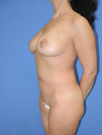 41 year old female for breast lift and fat grafting augmentation 1163508