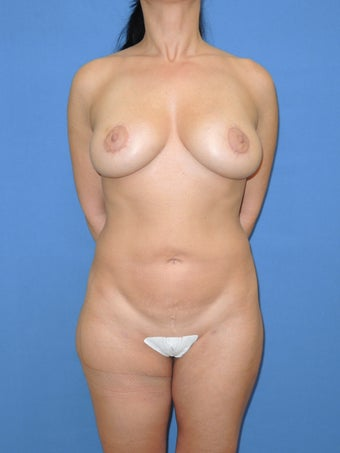 41 year old female for breast lift and fat grafting augmentation after 1163508