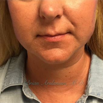 35-44 year old woman treated with Kybella for double chin reduction after 3151937