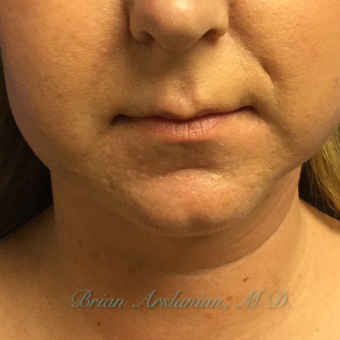 35-44 year old woman treated with Kybella for double chin reduction before 3151937