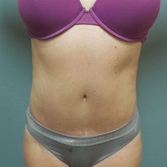 35-44 year old woman treated with Tummy Tuck after 1938070