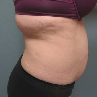 35-44 year old woman treated with Tummy Tuck 1938070
