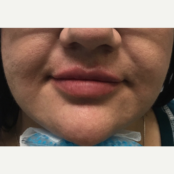 25-34 year old woman treated with Juvederm after 3684612