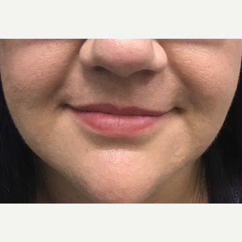 25-34 year old woman treated with Juvederm before 3684612