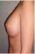 18-24 year old woman treated with Breast Implants 3088568