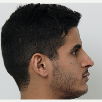 25-34 year old man treated with Revision Rhinoplasty after 3583832