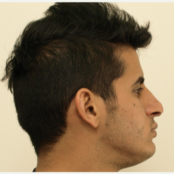 25-34 year old man treated with Revision Rhinoplasty before 3583832