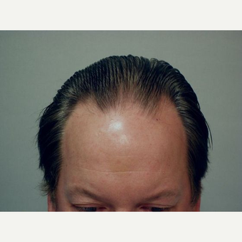 Hair Transplant before 3241375