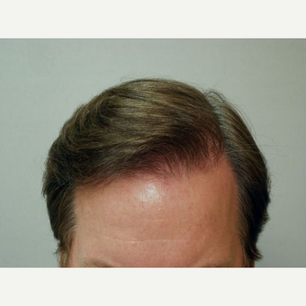 Hair Transplant after 3241375