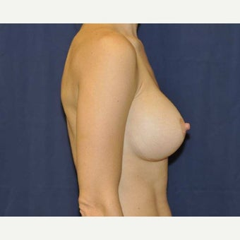 35-44 year old woman treated with Breast Augmentation using 275cc Gel Implants 1690440