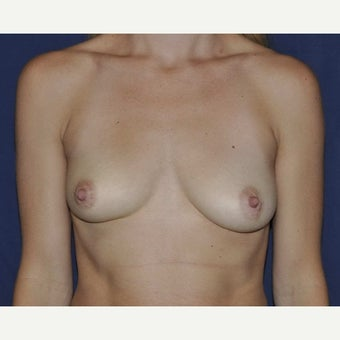 35-44 year old woman treated with Breast Augmentation using 275cc Gel Implants before 1690440