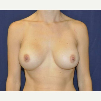 35-44 year old woman treated with Breast Augmentation using 275cc Gel Implants after 1690440