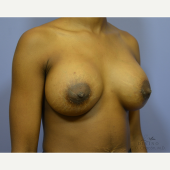 18-24 year old woman treated with Breast Augmentation after 3386441