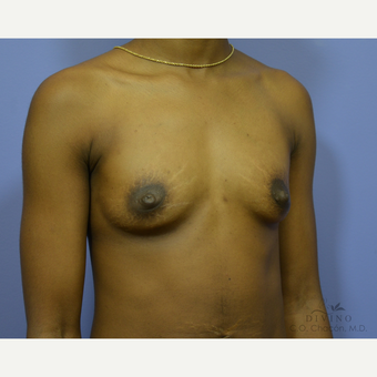 18-24 year old woman treated with Breast Augmentation before 3386441