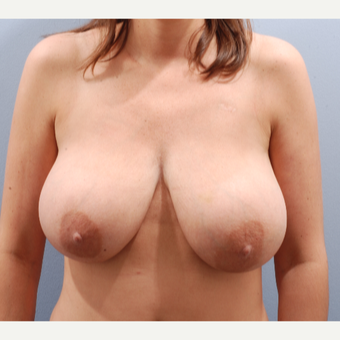 35-44 year old woman treated with Breast Reduction before 3645088